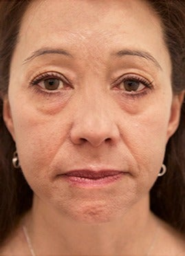 45 year old woman treated with lower blepharoplasty with fat removal before 2870046