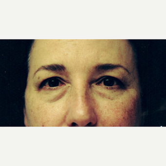 45-54 year old woman treated with Eye Bags Treatment before 3236289
