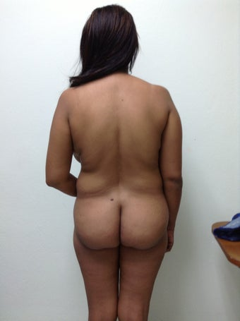 24 years old female treated with brazilian butt lift before 1365367