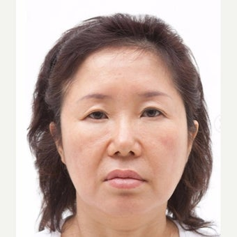 45-54 year old woman treated with SMAS Facelift/eyelid surgery/nasolabial folds surgery.