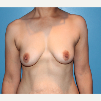 25-34 year old woman treated with Breast Augmentation before 3550916