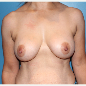 25-34 year old woman treated with Breast Augmentation after 3550916
