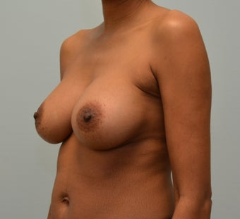 Breast Augmentation with Natrelle 410 Anatomically Shaped Implants 2988519