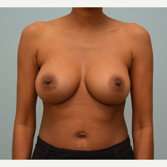 Breast Augmentation with Natrelle 410 Anatomically Shaped Implants after 2988519