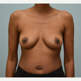 Breast Augmentation with Natrelle 410 Anatomically Shaped Implants before 2988519