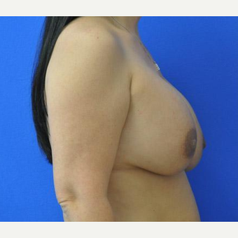 Breast Augmentation before 3206522
