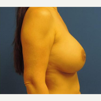 Breast Augmentation after 3206522