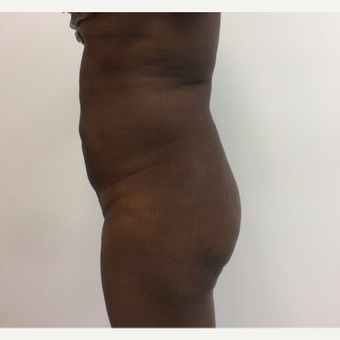 45-54 year old woman treated with Liposuction after 3658043