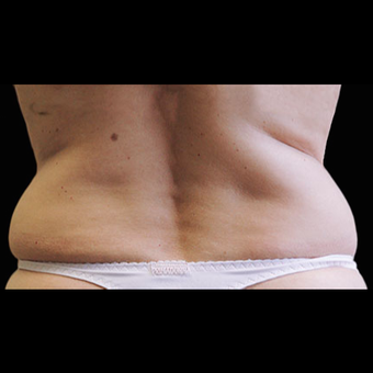 CoolSculpting before 1526605