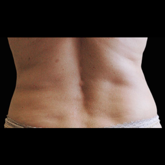 CoolSculpting after 1526605