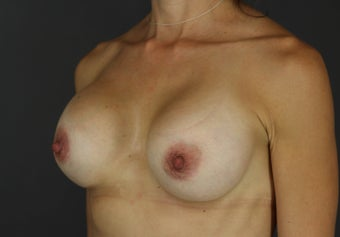 Bilateral Breast Implant Revision with Strattice