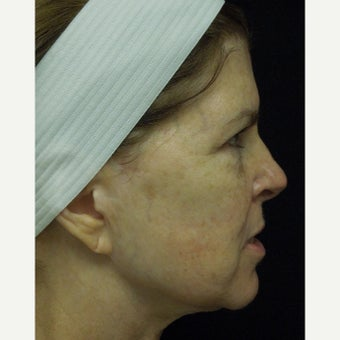 55-64 year old woman treated with Photofacial before 2297106