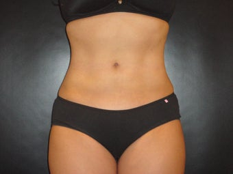 "Hi-definition sculplting with Smartlipo and  ""PRO-Sculpt"" Formula after 615670"