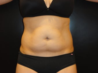 "Hi-definition sculplting with Smartlipo and  ""PRO-Sculpt"" Formula before 615670"