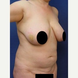 45-54 year old woman treated with Mini Tummy Tuck before 2073575