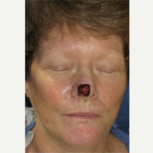 55-64 year old woman treated with Mohs Surgery before 3389152