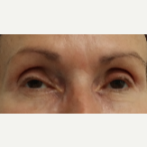 65-74 year old woman treated with Restylane for her tear troughs after 3412133