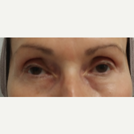 65-74 year old woman treated with Restylane for her tear troughs before 3412133