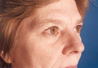54 Year Old Female Underwent Lower and Upper Eyelid Surgery