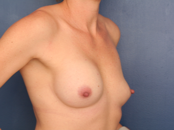 Breast Implant Revision using Ideal Implants before 3635147