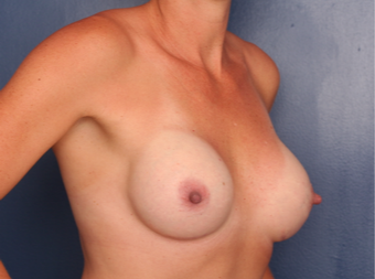 Breast Implant Revision using Ideal Implants after 3635147