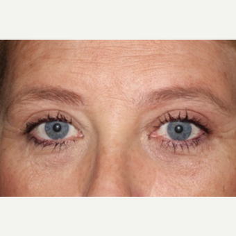 55-64 year old woman treated with Eyelid Surgery after 3170602