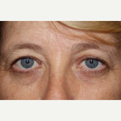 55-64 year old woman treated with Eyelid Surgery before 3170602