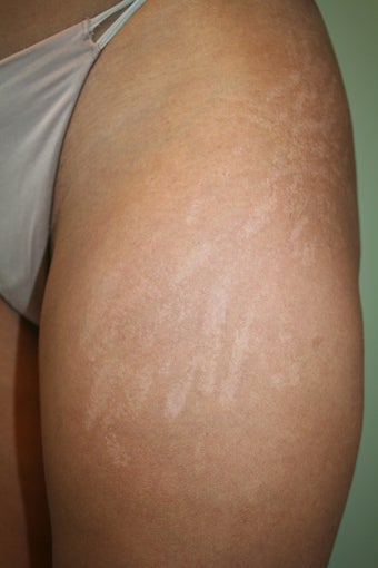 Carboxy Therapy - stretch mark treatment before 1177303