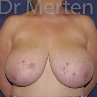Breast Reduction before 3681228