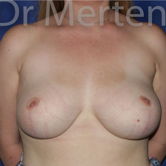 Breast Reduction after 3681228