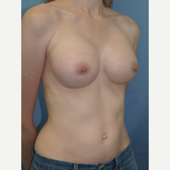 32 year old woman treated with Breast Implants with Gummy Bear style highly cohesive shaped implants after 3193237