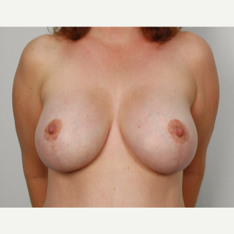 35-44 year old woman treated with Breast Lift with Implant after 3026522