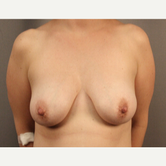 35-44 year old woman treated with Breast Lift with Implant before 3026522