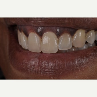 55-64 year old woman treated with Dental Implants after 1866767