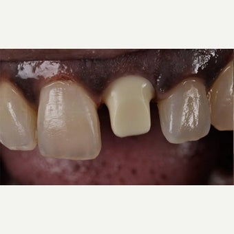 55-64 year old woman treated with Dental Implants