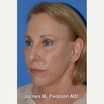 55-64 year old woman treated with Facelift after 3802251