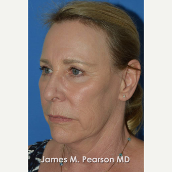 55-64 year old woman treated with Facelift before 3802251