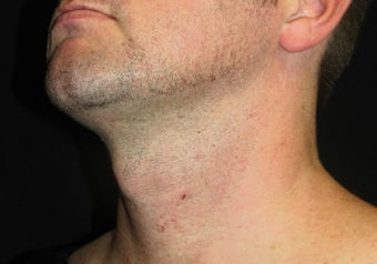 33 year old man treated with NeckTite RFAL after 3683543