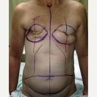 Breast Reconstruction Revision with DIEP flaps for this 52 Year Old Woman before 3005394