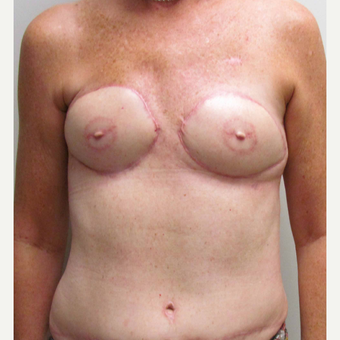 Breast Reconstruction Revision with DIEP flaps for this 52 Year Old Woman after 3005394