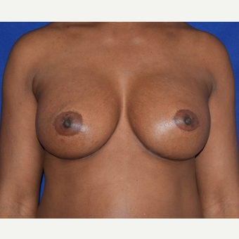 35-44 year old woman treated with Breast Augmentation after 2985967