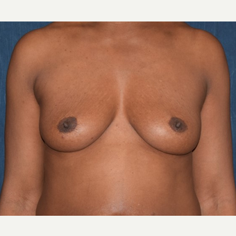 35-44 year old woman treated with Breast Augmentation before 2985967