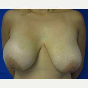 Breast Lift before 3055113