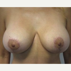 Breast Lift after 3055113
