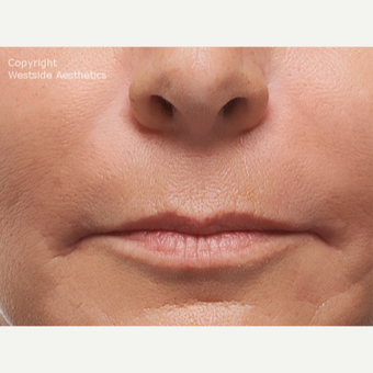 Radiesse Nasolabial Folds after 2972689