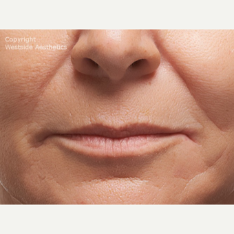 Radiesse Nasolabial Folds before 2972689