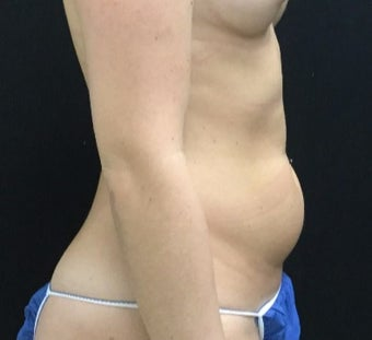 25-34 year old woman treated with Liposuction to Flanks / Love Handles before 3200900