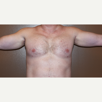 45-54 year old man treated with Custom Pectoral and Bicep Implants after 3407832