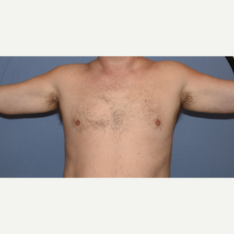 45-54 year old man treated with Custom Pectoral and Bicep Implants before 3407832