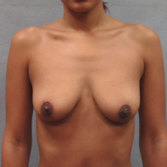 25-34 year old woman treated with Breast Augmentation before 3259712